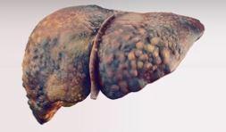 HIV en co-infectie hepatitis